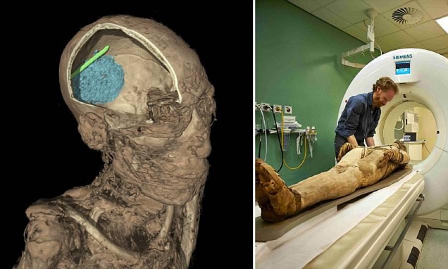 دنیا کی آٹھویں قدیم ترین ممی کا سٹی سکین
