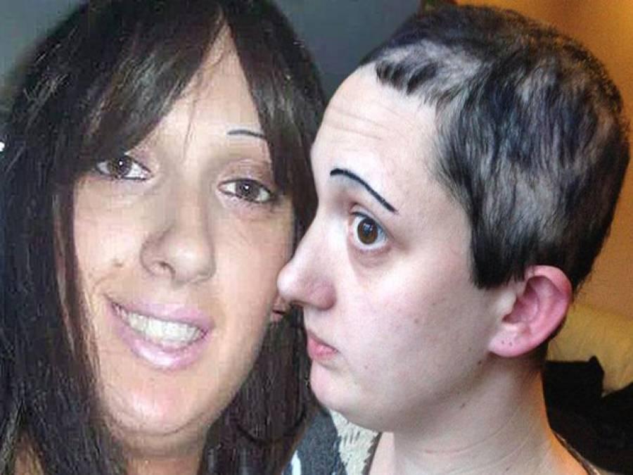 بال نوچنے والی عجیب بیماری