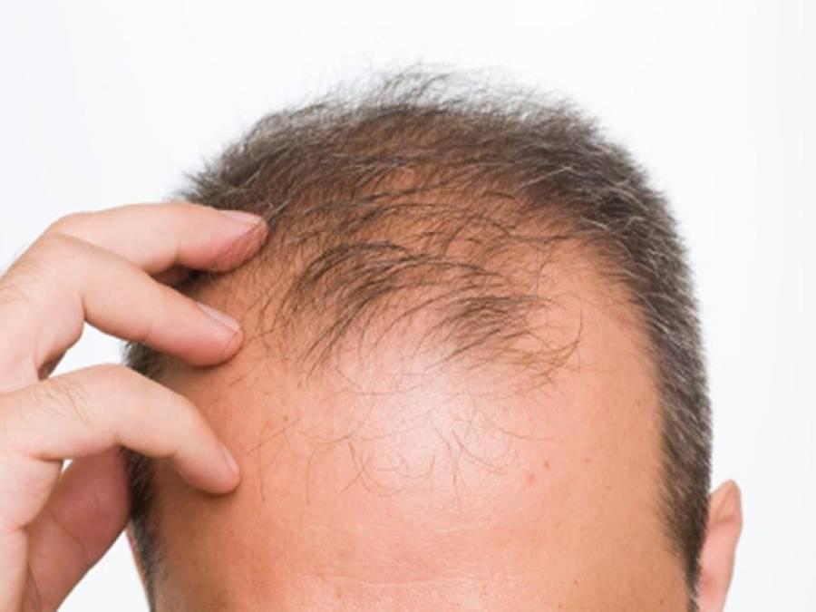 گرتے بالوں کے لئے مفید ٹوٹکے