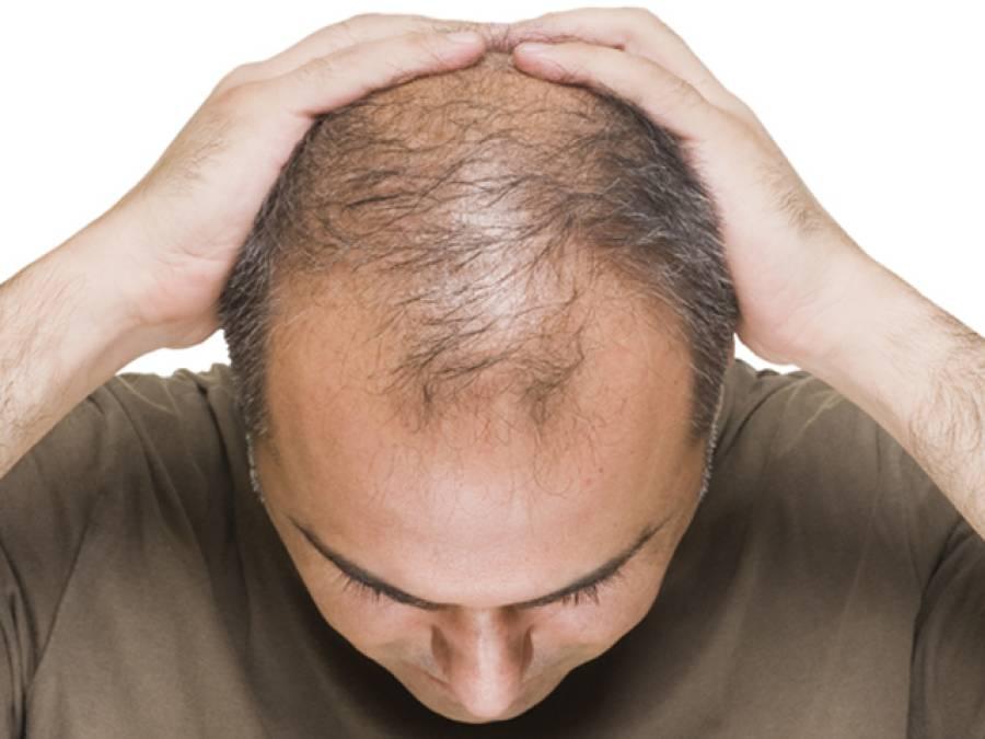 گرتے بالوں کے علاج کے لیے آسان آزمودہ گھریلو نسخے