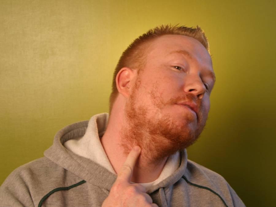 کچھ لوگوں کی داڑھی پوری طر ح کیوں نہیں آتی؟تحقیق میں وجہ سامنے آگئی