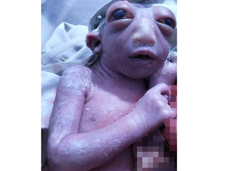 بھارت میں آدھے سر کے ساتھ پیدا ہونے والی نومولود بچی ،حمل کے دوران ماں کی کس غلطی کا یہ نتیجہ نکلا ،ماہرین نے اولاد کے خواہشمند جوڑوں کو خبر دار کردیا