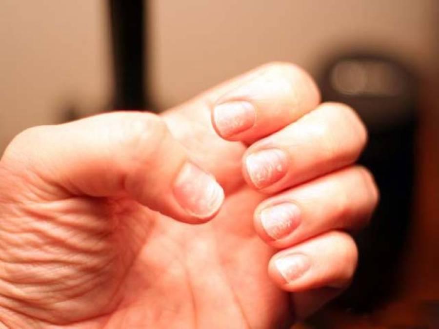 اگر آپ کے ناخن بھی جلد ٹوٹ جاتے ہیں یا پٹھوں میں اکثر درد رہتا ہے تو یہ خبر ضرور پڑھ لیں، وہ معلومات جو آپ کو بڑی پریشانی سے بچاسکتی ہیں