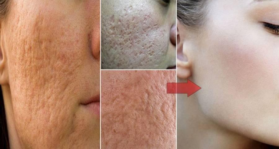 چہرے سے اس قسم کے نشانات ہٹانے کا آسان ترین قدرتی طریقہ، آپ کے کچن میں موجود یہ چیز چند دنوں میں ہی جلد کو بے داغ بناسکتی ہے