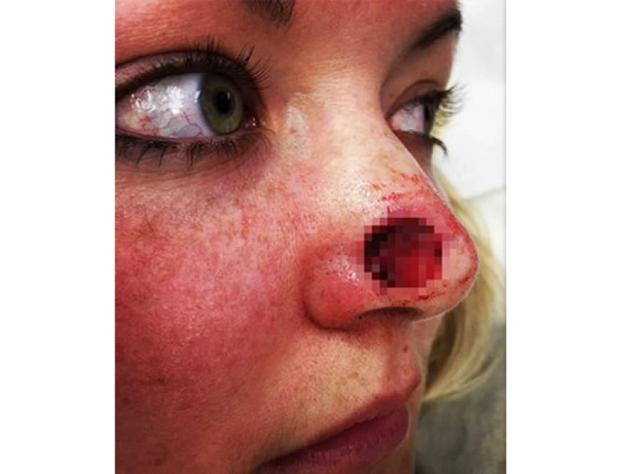 ایک چھوٹی سی غلطی جو اکثر لوگ کرتے ہیں، نے اس لڑکی کی جلد کا یہ حال کر دیا، دنیا بھر کے لوگوں کو خبردار کر دیا