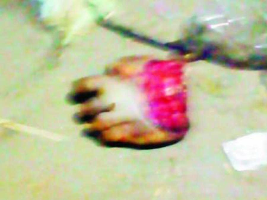 کچرے کے ڈھیر سے بچے کا کٹا ہوا پاﺅں ملنے پر شہریوں میں خوف وہراس