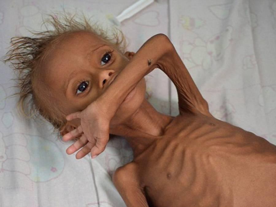 بھوک سے مرتے بچے کی یہ تصویر کس اسلامی ملک سے سامنے آئی؟ یہ شام یا عراق نہیں بلکہ۔۔۔ ایسی حقیقت کہ ہر مسلمان شرم سے پانی پانی ہوجائے