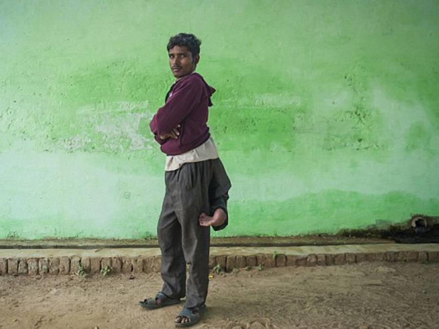 دنیا کا واحد آدمی جس کی 4 ٹانگیں ہیں