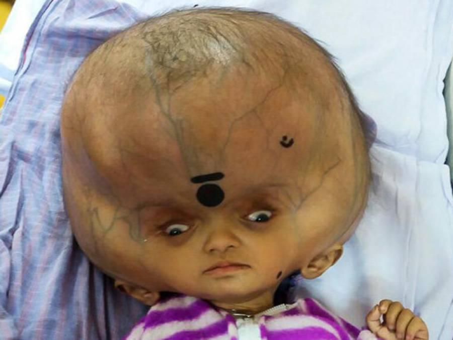 بھارت میں ایک ایسے بچے کی پیدائش کہ پوری دنیا کی توجہ کا مرکز بن گیا