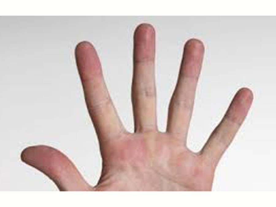 اگر آپ کے ہاتھ کی انگلیوں میں یہ ایک بات ہے تو آپ کو زندگی میں بہت دولت ملنے کا امکان بے حد زیادہ ہے، سائنسدانوں نے جدید تحقیق میں انتہائی حیران کن انکشاف کردیا