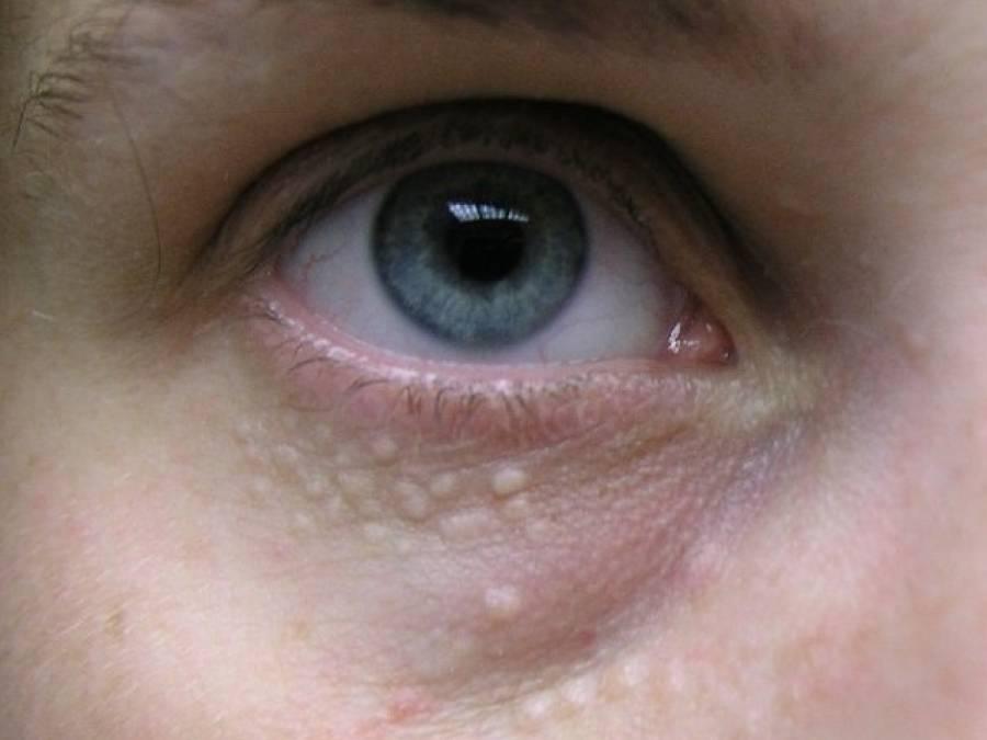 آنکھوں کے گرد بننے والے اس طرح کے دانوں سے نجات کے لئے آسان ترین نسخہ
