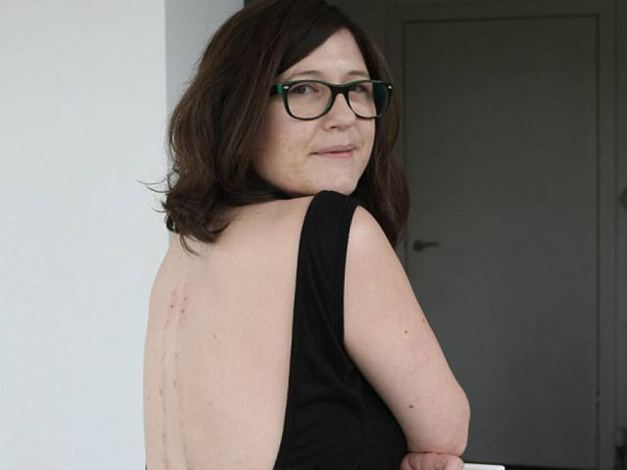'میں خود جان بوجھ کر ہر ہفتے 30 شہد کی مکھیوں سے اپنی کمر پر ڈنگ مرواتی ہوں تاکہ۔۔۔' خاتون نے اس خطرناک عادت کی ایسی وجہ بتادی کہ جان کر ڈاکٹر بھی دنگ رہ جائیں