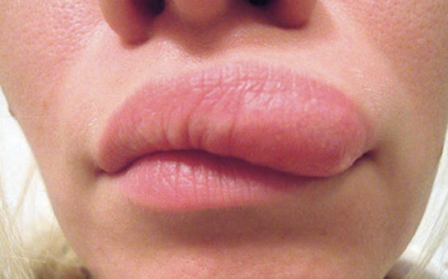 نوجوان لڑکی کا ہونٹ اچانک سوج گیا، ڈاکٹر نے معائنہ کیا تو ایسی وجہ بتا دی کہ واقعی ہوش اڑا دیئے، یہ تو کبھی سوچ بھی نہ سکتی تھی کہ ہونٹ کے اندر۔۔۔