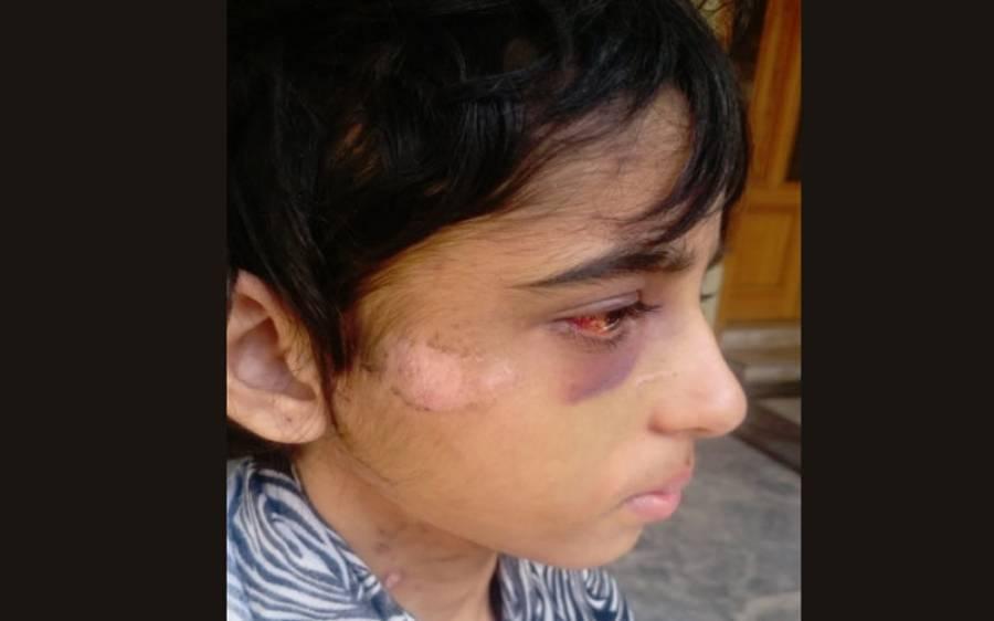 راولپنڈی:خاتون سرکاری افسرکا خاوند کے ساتھ ملکر 11سالہ گھریلو ملازمہ پر تشدد،انسانی حقوق کی وزیر نے نوٹس لے لیا