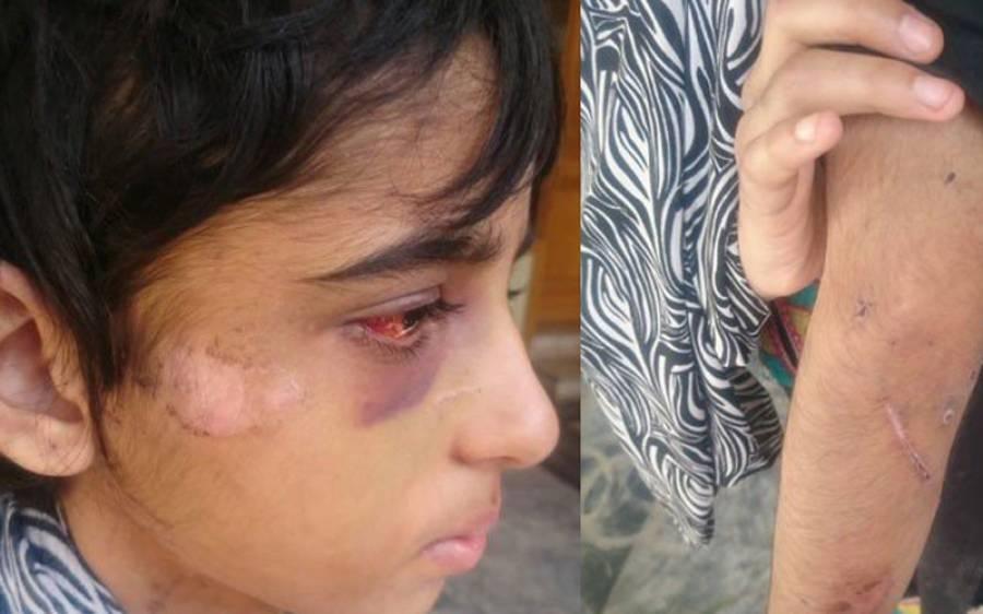 گھریلو ملازمہ کنزہ پر تشدد کا معاملہ،چائلڈ پروٹیکشن بیورومیں مقدمہ درج کر لیا گیا : سی پی او عباس احسن