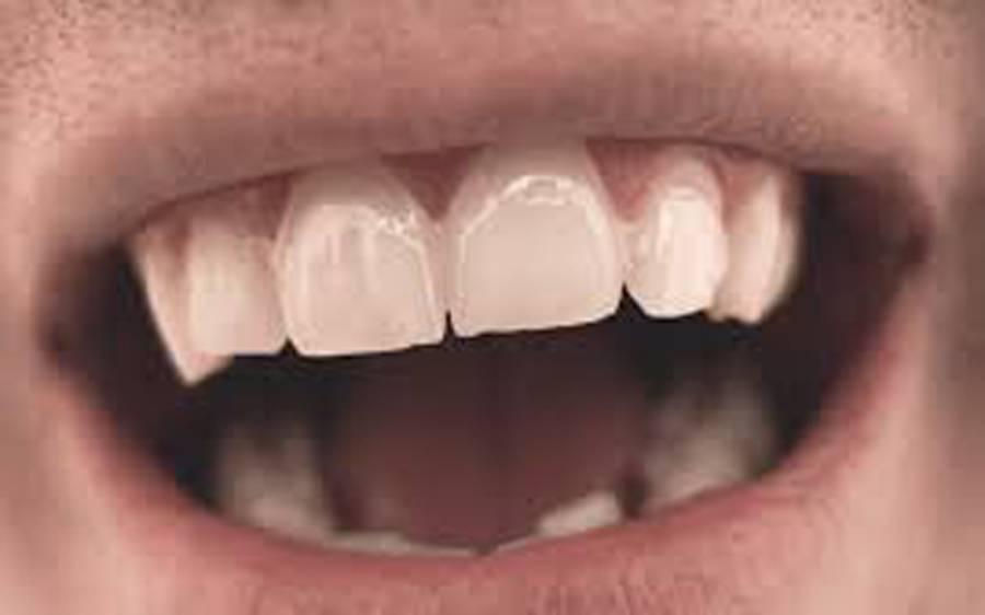منہ کے چھالوں سے نجات کا آسان گھریلو نسخہ