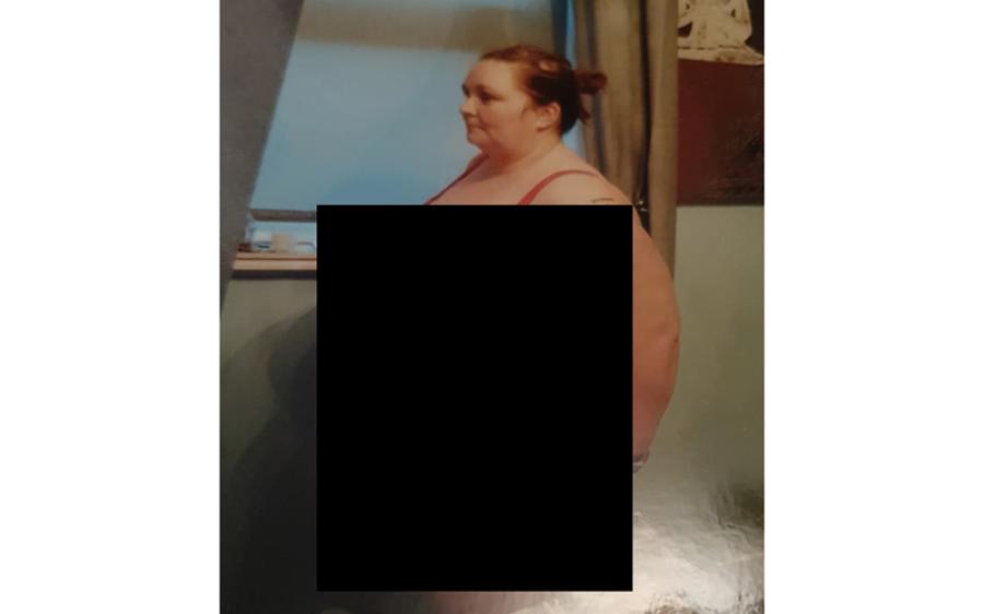 125 کلو وزن کم کرنے والی خاتون، پہلے کیسی نظر آتی تھی اور اب کیسی؟ دیکھ کر آنکھوں پر یقین نہ آئے