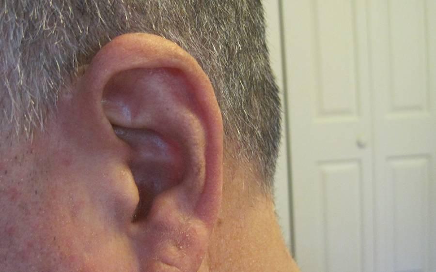 کان میں خارش، آدمی اسے کان کی میل سمجھتا رہا، لیکن دراصل کیا چیز تھی؟ کان کی صفائی کی تو ہوش اُڑ گئے