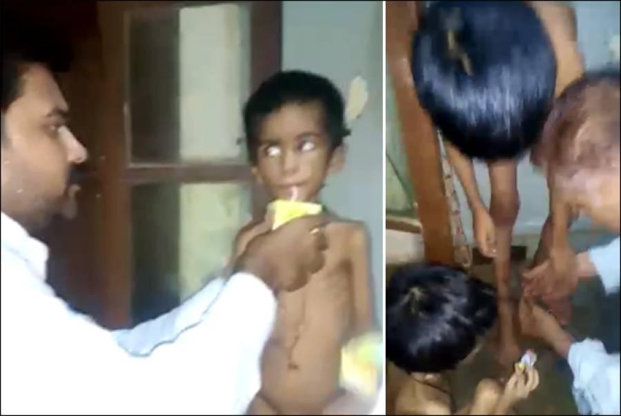کراچی میں سوتیلی ماں نے معصوم بچوں پر ظلم کے پہاڑ توڑ دیے، تصاویر دیکھ کر آنکھوں میں آنسو آجائیں