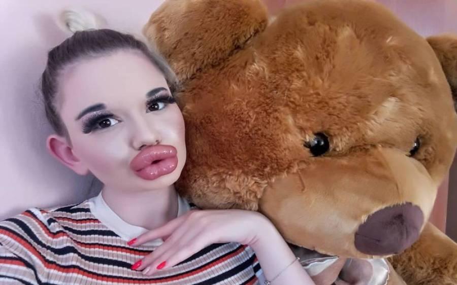وہ لڑکی جس کے دنیا میں سب سے بڑے ہونٹ ہیں، ڈاکٹروں نے وارننگ دے دی