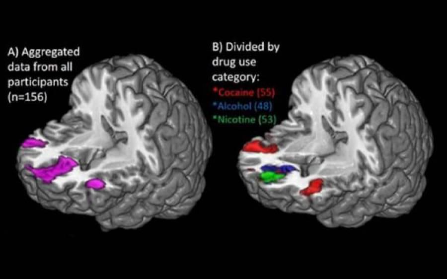 انسانی دماغ کوکین اور سگریٹ جیسے نشوں پر کیا ردعمل دیتا ہے، سائنسدانوں نے معائنہ کیا تو ایسا انکشاف کہ دنگ رہ گئے