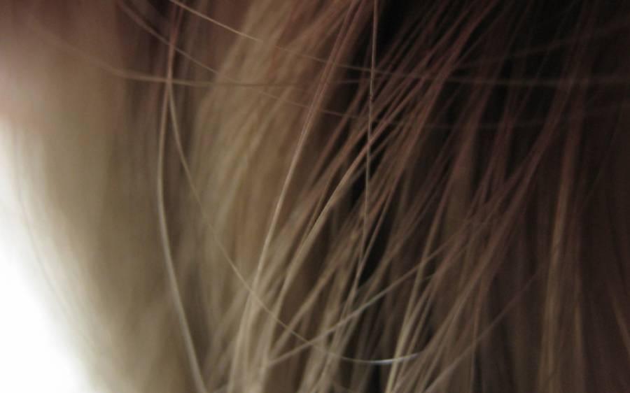 ڈپریشن کی وجہ سے بالوں سے ہاتھ دھونے والی خاتون نے بال واپس لانے کا آسان طریقہ بتادیا