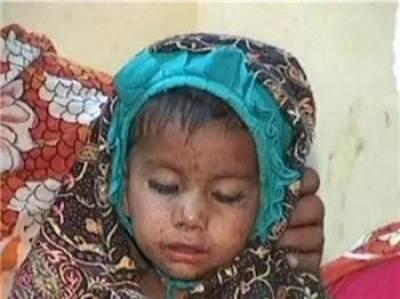 سندھ میں خسرے سے مزید چودہ بچے جاں بحق،ہلاکتوں کی تعداد196ہو گئی