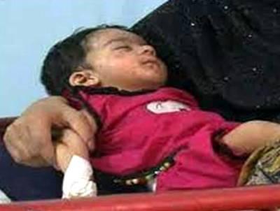 خسرہ سے مزید تین بچے جاں بحق ہوگئے، ہلاکتوں کی تعداد 100 تک پہنچ گئی