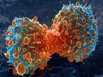خطرناک کینسر کا علاج ممکن