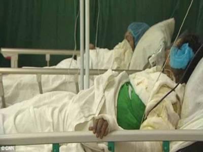 راولپنڈی،غصے میں اندھے پڑوسیوں نے10سالہ بچی پرتیزاب پھینک دیا