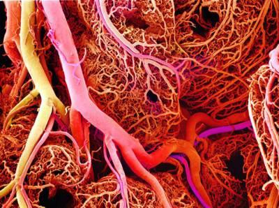 سائنس کا نیا کارنامہ، مصنوعی شریانیں تیار کر لیں