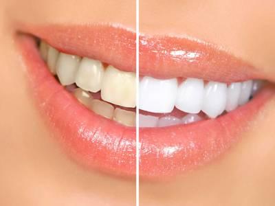 ٹوتھ پیسٹ کی عدم موجودگی میں دانتوں کو صاف کرنے کے لئے آسان طریقہ