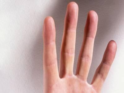 انگلیوں کی لمبائی سے بیماری کی نشاندہی ممکن