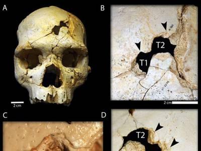 انسانی تاریخ کا قدیم ترین قتل ,کیا طریقہ اختیار کیا گیا ؟تحقیق کارو ں نے بتا دیا