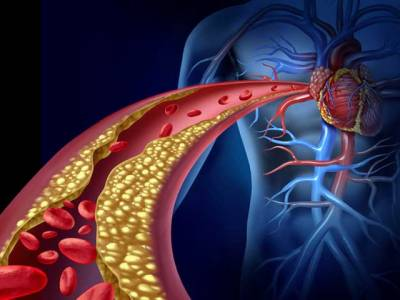 صحت کی وہ علامات جوخون کی بند شریانوں کی نشاندہی کریں ، آگاہی حاصل کریں اور محفوظ رہیں