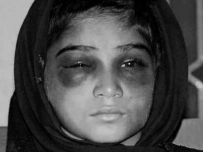 کاہنہ میں تشدد کا نشانہ بننے والی گھریلو ملازمہ کو چائلڈپروٹیکشن نے تحویل میں لے لیا