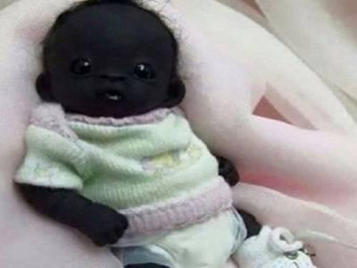 دنیا کے سیاہ ترین بچے کی مبینہ تصویر نے ہلچل مچادی