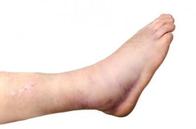اگر آپ کو بھی پیروں یا ٹانگوں کی سوجن کا مسئلہ درپیش ہے تو ان مشوروں پر عمل کرکے اس مصیبت سے نجات حاصل کرسکتے ہیں