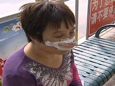 چینی شوہر اپنی بیوی کی ناک کچی چبا گیا لیکن اس انتہائی اقدام کی وجہ کیا بنی؟ جان کر آپ کی حیرت کی انتہا نہ رہے گی