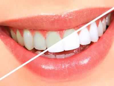 صرف3 منٹ میں دانتوں کو سفید اور چمکدار بنانے کیلئے آسان ترین قدرتی نسخہ
