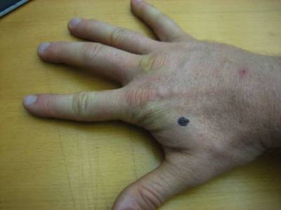 ہاتھ پر چند منٹ اس پوائنٹ کو دبا کر آپ صحت کے کس سنگین ترین مسئلے سے چھٹکارا پاسکتے ہیں؟ جواب آپ کو آزمانے پر مجبور کردے گا