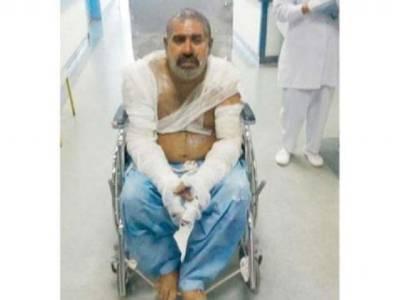 ریسٹورنٹ میں آگ لگنے کے باعث پاکستانی ملازم بری طرح جھلس گیا