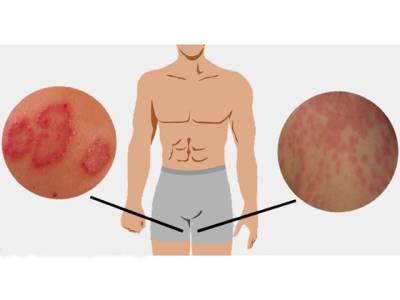 گرمیوں میں جسم کے اس حصے میں پڑنے والی خراشوں کا آسان ترین قدرتی علاج جانئے