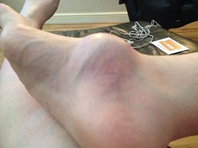 خاتون 12 برس تک اپنی ٹانگ پر موجود اس 'پھوڑے' کو نظر انداز کرتی رہی، بالآخر ڈاکٹر نے معائنہ کیا تو دراصل یہ کیا تھا؟ ایسی حقیقت کہ جان کر کوئی بھی گھبراجائے، جانئے اور اس ایک غلطی سے ہمیشہ گریز کریں