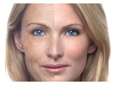 وہ ایک چیز جسے آپ چہرے پر لگائیں تو صرف چند دنوں میں تمام جھریاں اور بدنما داغ سرے سے غائب ہی ہوجائیں