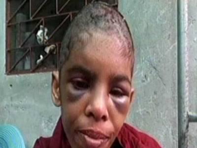 سیالکوٹ میں سوتیلی ماں نے بیٹی کو تشدد کا نشانہ بنا کر ذہنی طور پر مفلوج کردیا
