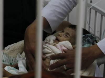 غذائی قلت، پاکستان میں 5 لاکھ بچوں کے لاغر ہونے کا خطرہ