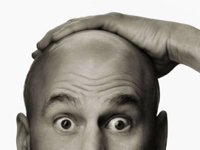 سائنس کے مطابق گنجے پن سے بچنے، بالوں کو گرنے سے روکنے کا یقینی طریقہ سامنے آگیا، لیکن طریقہ ایسا کہ صرف سن کر ہی مَردوں کی چیخیں نکل جائیں