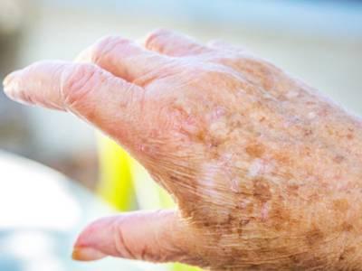 عمر کے ساتھ ساتھ جلد پر بننے والے اس طرح کے نشانات سے نجات کا قدرتی نسخہ جانئے