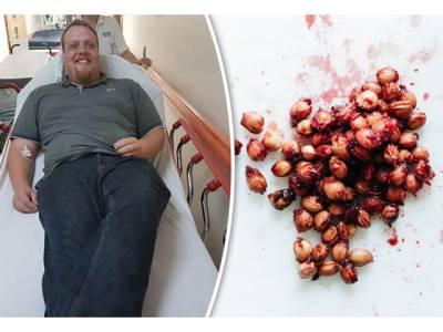 وہ پھل جس کے بیج کھانے سے آپ کی موت ہوسکتی ہے، جانئے اور کبھی غلطی سے بھی انہیں نہ کھائیں